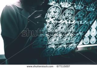 Stock-photo-alzheimer-s-disease-on-mri-677115007